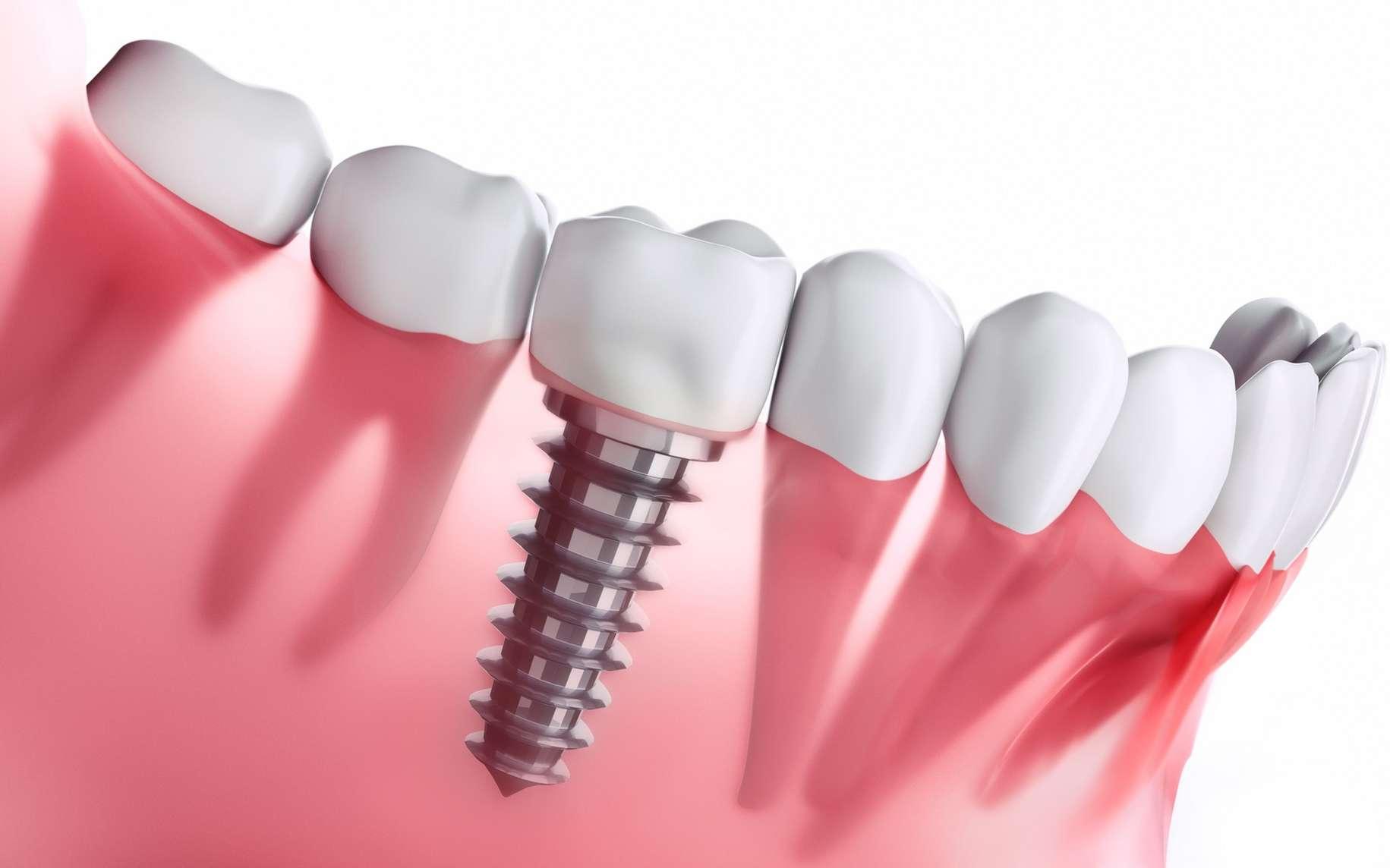 Implant dentaire Lyon : comment choisir un bon dentiste ?